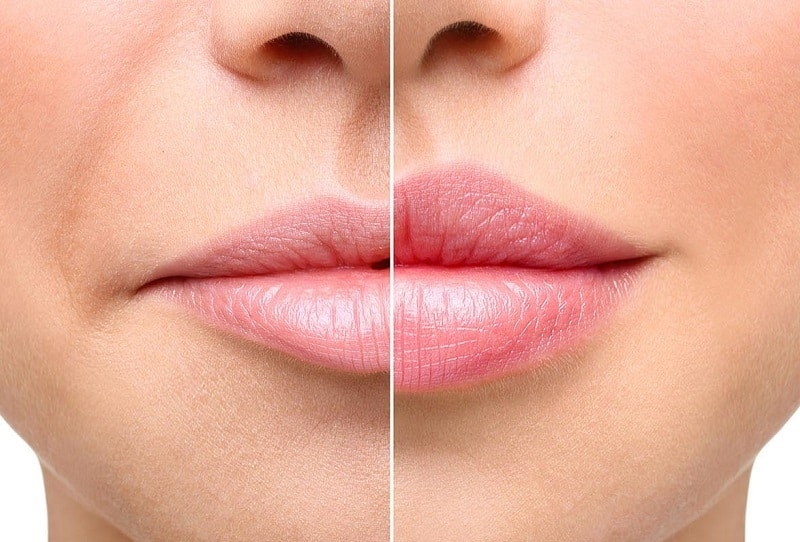 Обучение контурной пластике губ